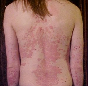 psoriasis on neck treatment