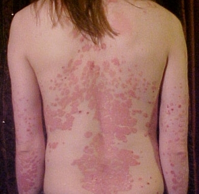 Psoriasis on the back