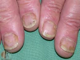 how to treat nail psoriasis